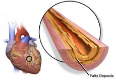 Μπλοκαρισμένες Αρτηρίες και Καρδιακή Προσβολή